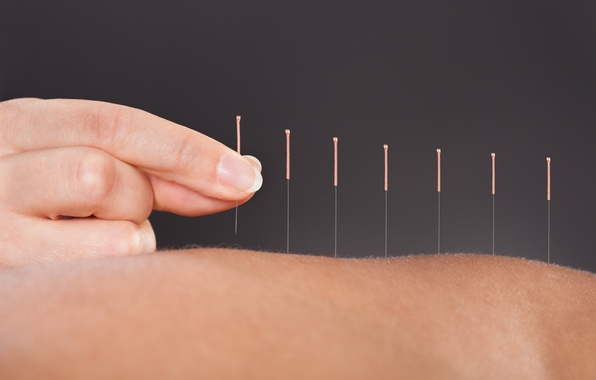 Picture back, skin, fingers, acupuncture