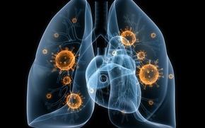 Picture disease, lungs, viruses, bacteria