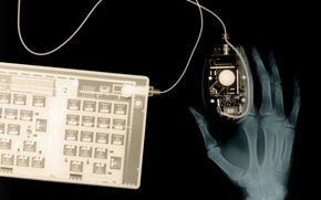 Picture hand, x-ray, keyboard