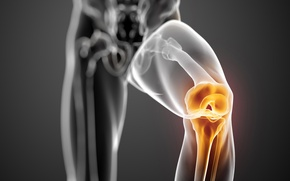 Picture pain, knee, joint